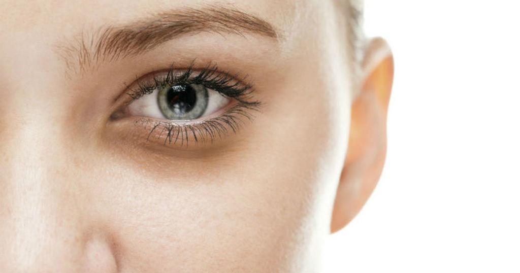 Ojeras, posibles causas y cómo evitarlas